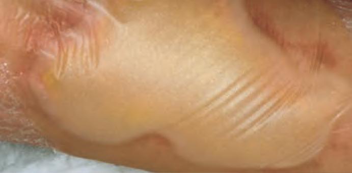 Έλκος κάτω άκρου (Ulcus cruris)